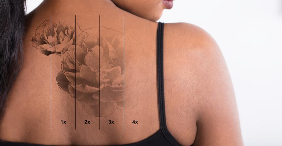 processo de remoção de tatuagem a laser