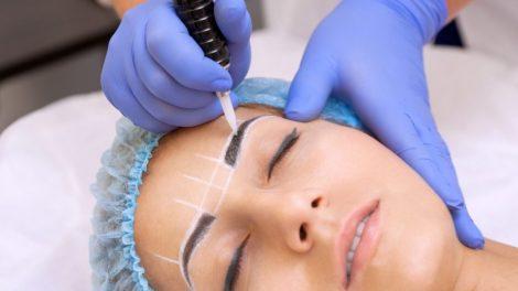 curso Despigmentação de Tatuagem e Micropigmentação a Laser